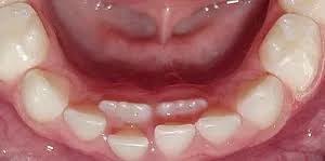 Shark teeth in kids