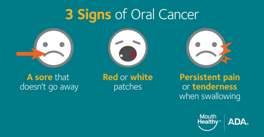 3 Signs of Oral Cancer